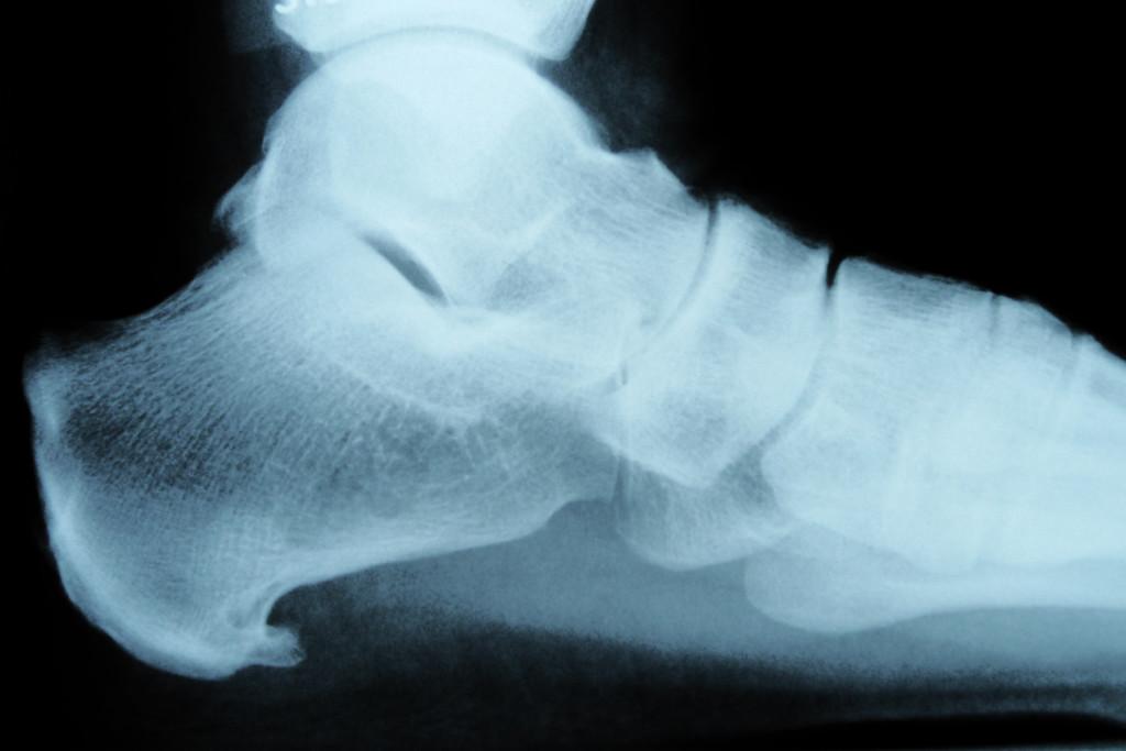 Heel bone spur which causes heel pain
