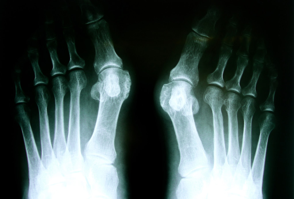 X-Ray showing Bunion