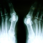 Bunion surgery Perth