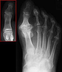Frozen Big Toe Joint
