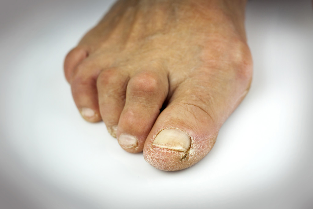 Hammer toe surgery Perth