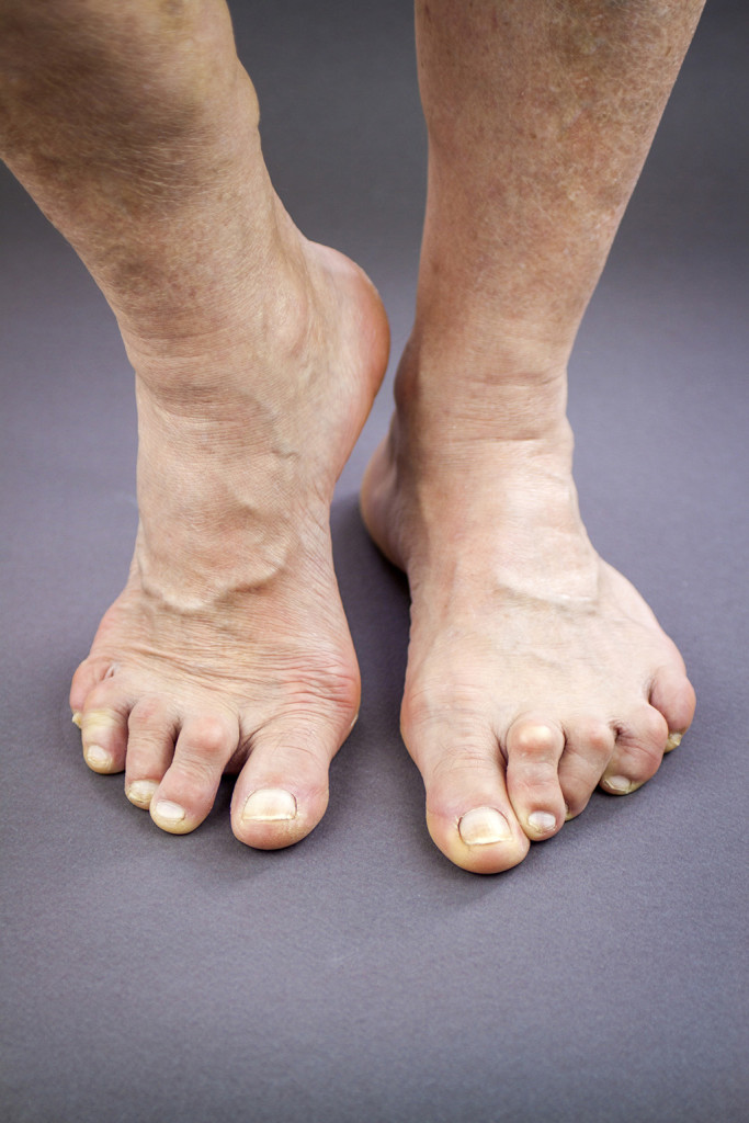 Treatment for hammer toes reduces discomfort