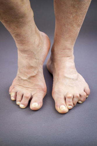Are your toes causing pain?