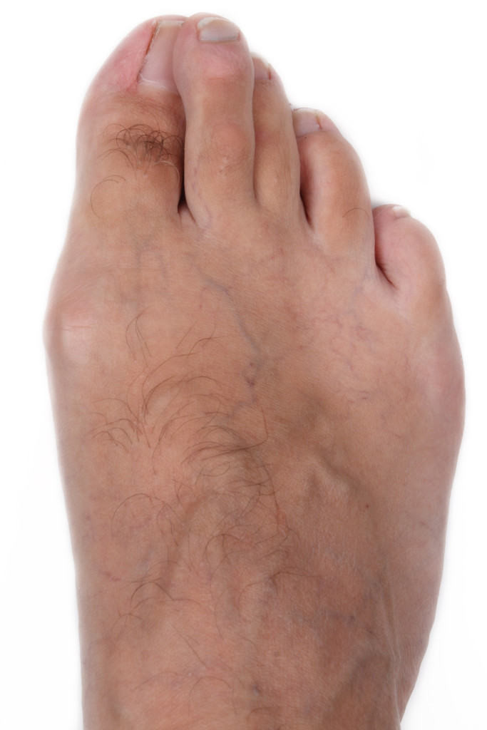 Hallux Valgus - Treatment for Bunions in Perth