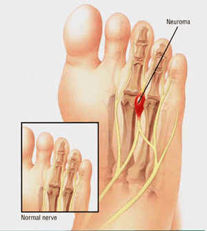 numbness between toes