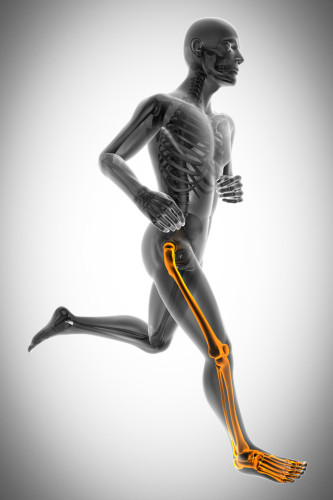 Do you have lower back pain, sore hips or knees? It could be due to your flat feet.