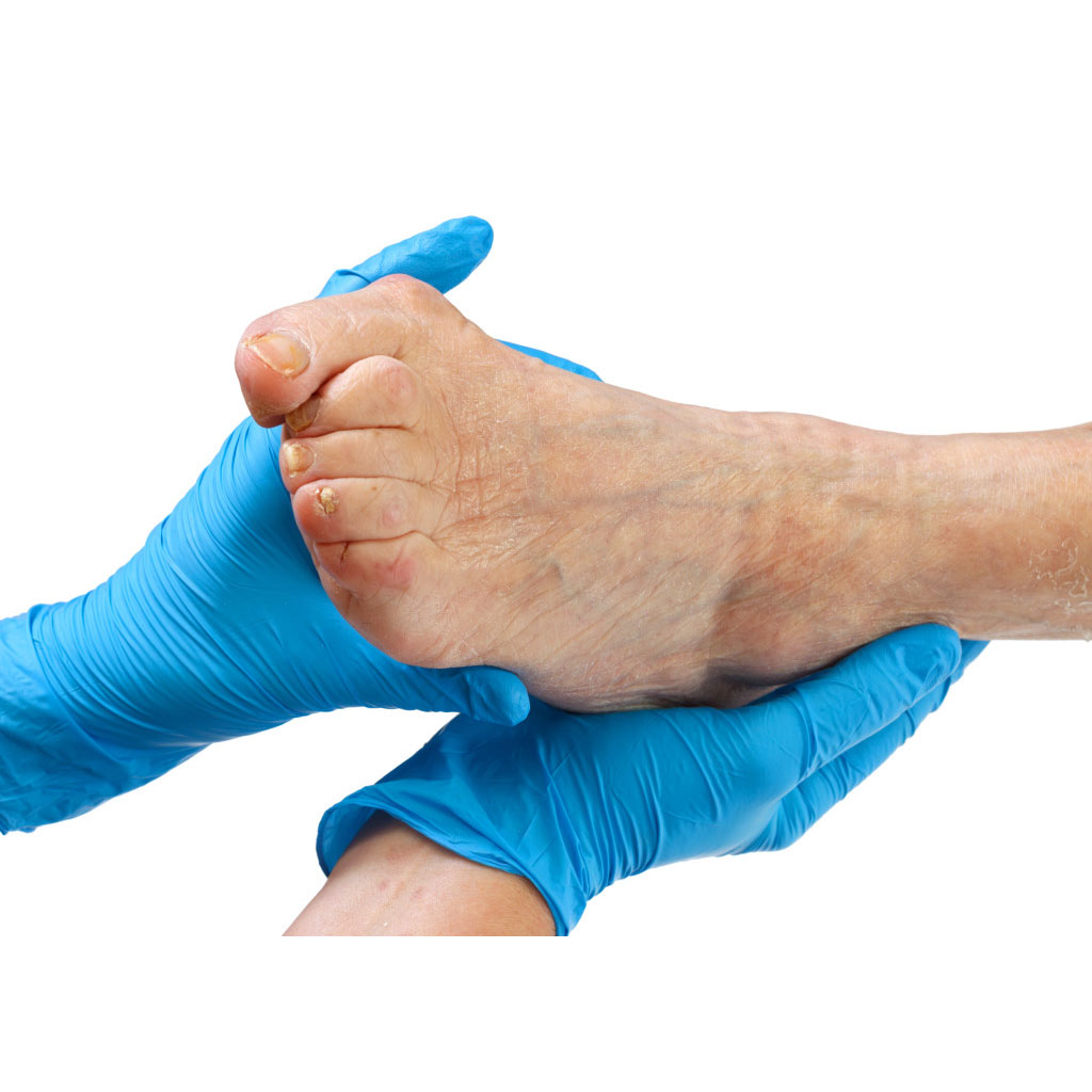 Bunion Surgery & Treatment