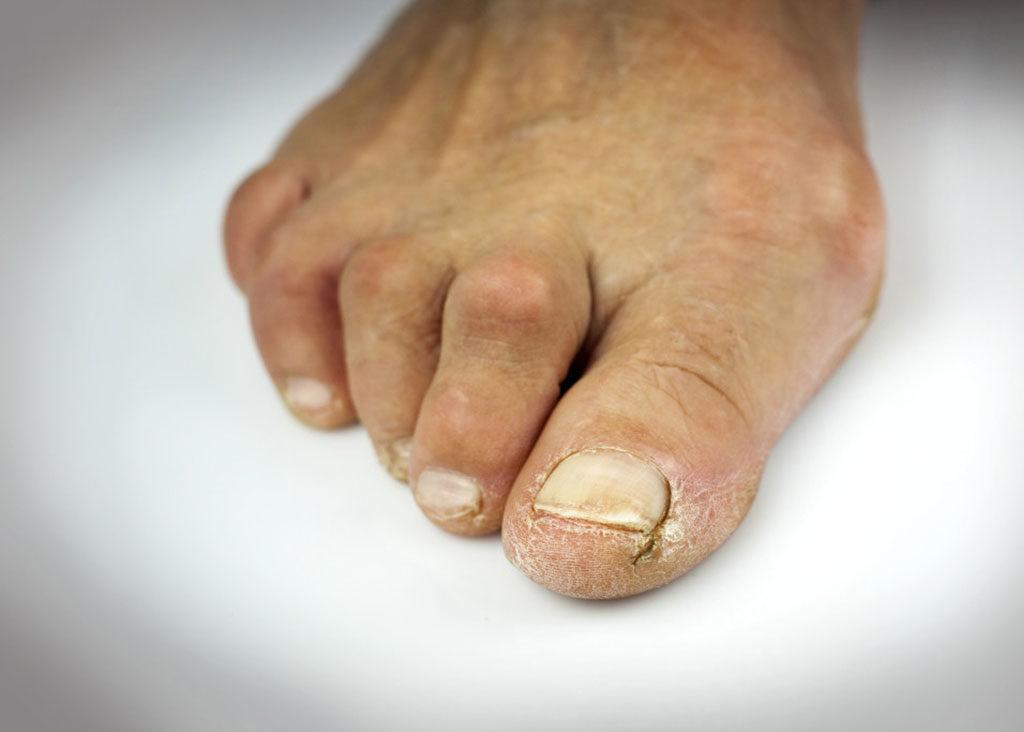 Hammer Toe / Claw toe