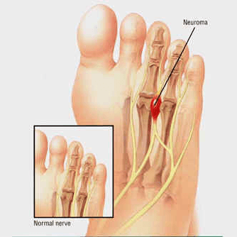 Morton's Neuroma / Nerve Impingement