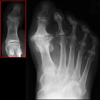 Arthritis in big toe joint
