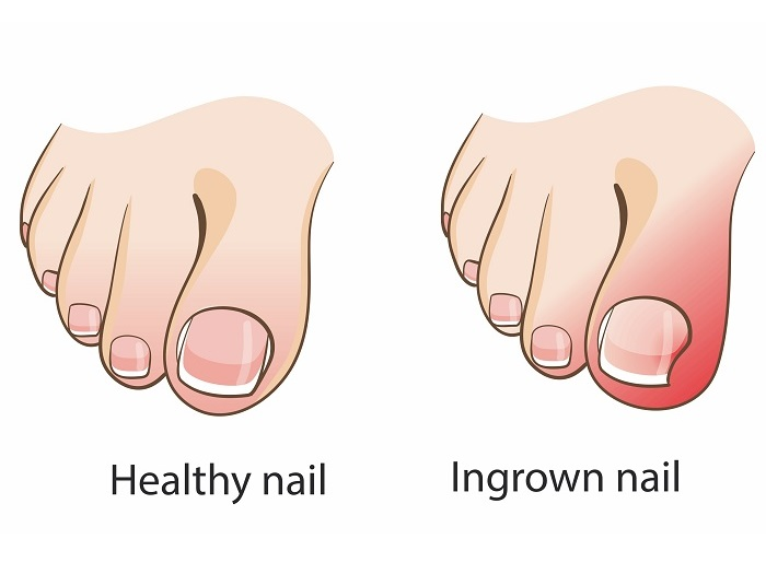 Healthy vs Ingrown Toenail