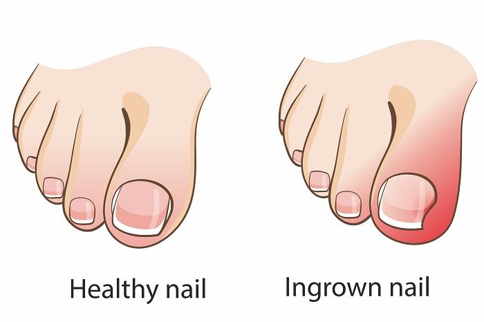 Healthy vs Ingrown Toenail
